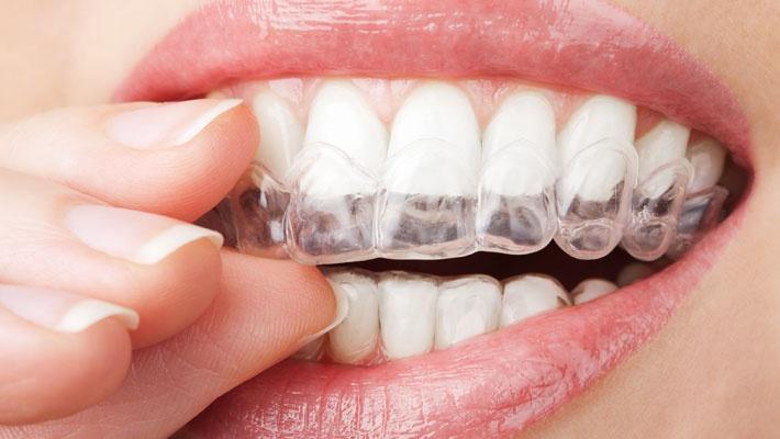 Clareamento Dental Caseiro Ou A Laser Qual O Melhor